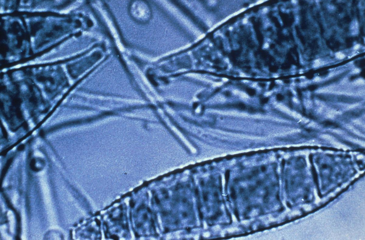 Microsporum canis, agent de la teigne microsporique, contractée à partir des chiens et chats domestiques. Dûe à un champignon dermatophyte dont la spore pénètre la couche cornée de la peau (kératine) puis envahit le poil ou le cheveu par un mycélium rubané. Teigne la plus commune, caractérisée par des plaques fluorescentes visibles aux rayons ultraviolets.