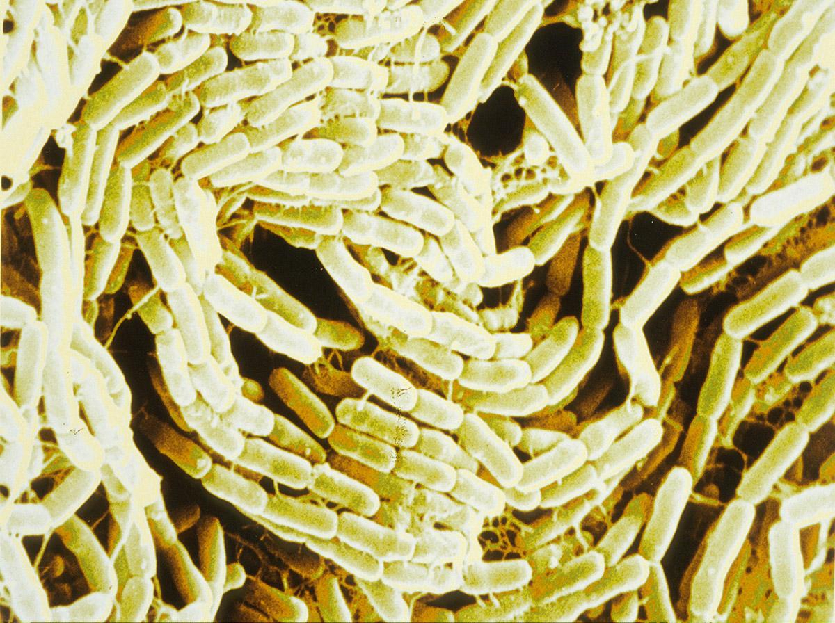 Bacillus thuringiensis. Bactérie, dont la toxine tue les moustiques ou les chenilles processionnaires du pin utilisée pour la lutte biologique contre les insectes. Vue en microscopie électronique à balayage. Image colorisée.